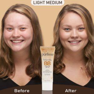 best bb creams acne prone skin