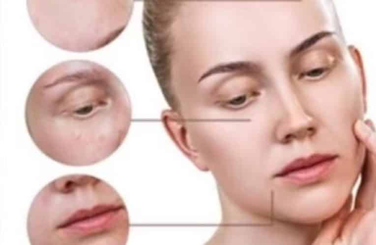 🥇Best Skin Lightening Cream for Hyperpigmentation – Gentle & Safe to Use