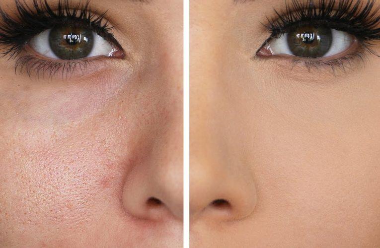 Best Primer for Large Pores: Mattifying Makeup Suitable for All Skin